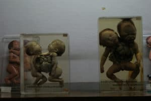 Musée de l'anatomie / musée médical à Bangkok [Thombori]