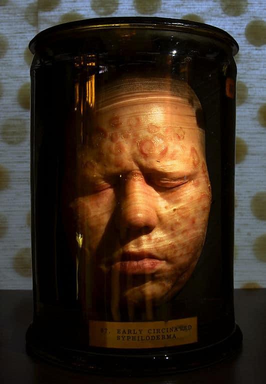 Tête en cire représentant une jeune femme victime de syphillis au musée de Londres dans le quartier de la City.